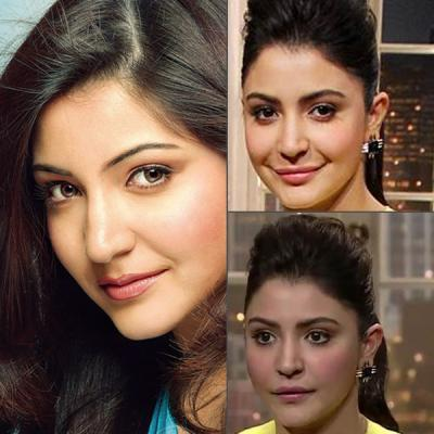 anushka sharma failed  lipjob