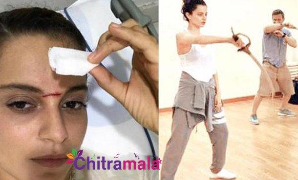Kangana injured on the sets of Manikarnika